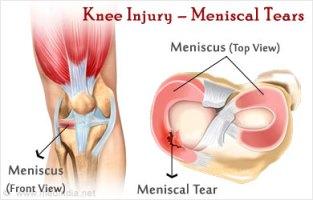 Meniscal Tear The Soccer Doctor