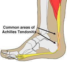 Achilles Tendionitis