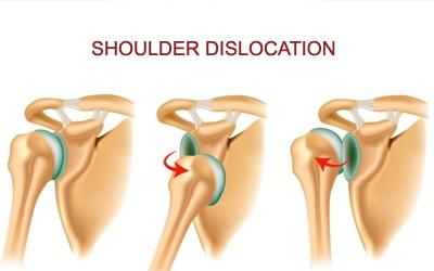 Astonishing Dislocated Shoulder Wiring Digital Resources Instshebarightsorg
