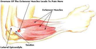 tennis-elbow-picture