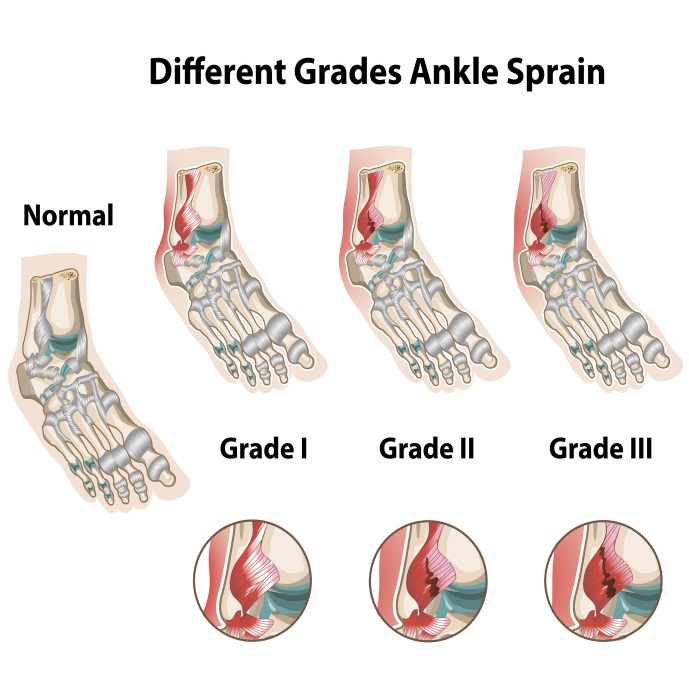 degrees-of-ankle-sprains-rs
