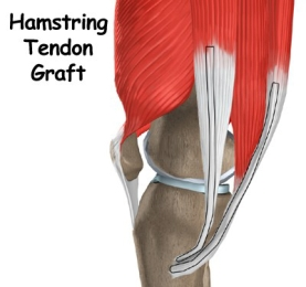 knee_acl_hamstring_tendon_intro02