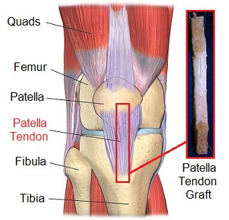 patellar-tendon-graft